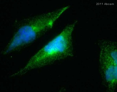 Immunocytochemistry/ Immunofluorescence - PICK1 antibody (ab3420)