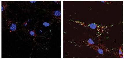 Immunocytochemistry/ Immunofluorescence - SCAMP5 antibody (ab3432)