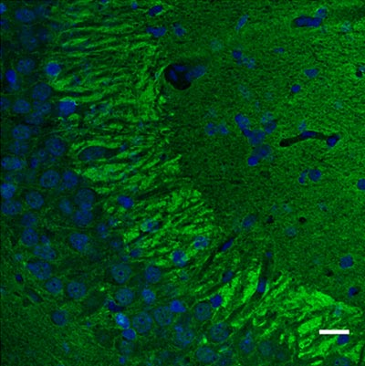 Immunohistochemistry (PFA perfusion fixed frozen sections) - Anti-Munc18-1 antibody (ab3451)