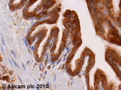 Immunohistochemistry (Formalin/PFA-fixed paraffin-embedded sections)-Dynamin 2 antibody(ab3457)