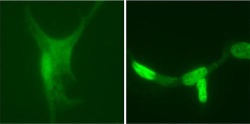 Immunocytochemistry/ Immunofluorescence - Anti-Androgen Receptor antibody (ab3510)