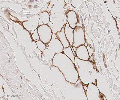 Immunohistochemistry (Formalin/PFA-fixed paraffin-embedded sections) - Anti-Perilipin A antibody (ab3526)