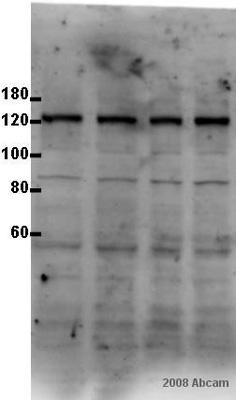 Western blot - Calcium Pump PMCA3 ATPase antibody (ab3530)