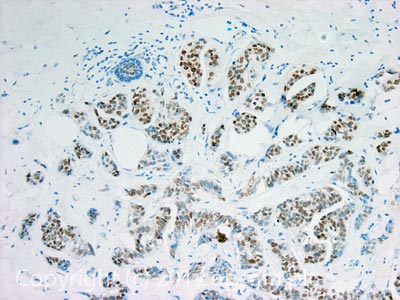Immunohistochemistry (Formalin/PFA-fixed paraffin-embedded sections) - Anti-Estrogen Receptor alpha antibody (ab3575)