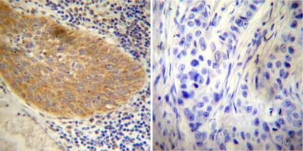 Immunohistochemistry (Formalin/PFA-fixed paraffin-embedded sections) - Anti-Glucocorticoid Receptor antibody (ab3578)