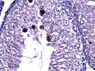 Immunohistochemistry (Formalin/PFA-fixed paraffin-embedded sections) - Anti-Argonaute 3 / eIF2C 3 antibody (ab3593)