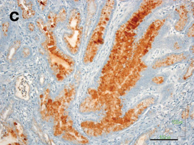 Immunohistochemistry (Formalin/PFA-fixed paraffin-embedded sections) - Anti-Mucin 5AC antibody [45M1] (ab3649)
