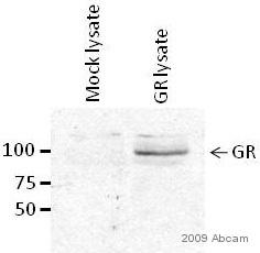 Western blot - Glucocorticoid Receptor antibody (ab3671)