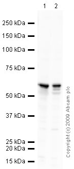 Western blot - Calcineurin A antibody (ab3673)