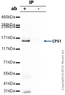 Immunoprecipitation - Anti-CPS1 antibody - Liver Mitochondrial Marker (ab3682)