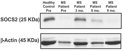 Western blot - Anti-SOCS2  antibody (ab3692)