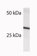 Western blot - SOCS3  antibody (ab3693)