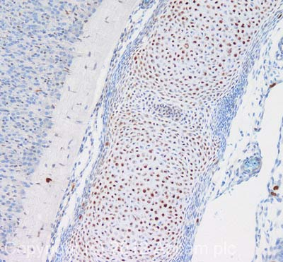 Immunohistochemistry (Formalin/PFA-fixed paraffin-embedded sections) - Anti-SOX9 antibody - ChIP Grade (ab3697)