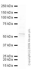 Western blot - Vimentin antibody [VI-RE/1] (ab3974)