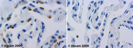 Immunohistochemistry (Formalin/PFA-fixed paraffin-embedded sections) - Anti-LDL Receptor antibody (ab30532)
