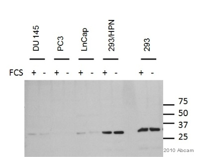 Western blot - Rabbit polyclonal Secondary Antibody to Duck IgY - ΔFc (HRP) (ab31140)