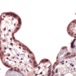 Immunohistochemistry (Formalin/PFA-fixed paraffin-embedded sections) - Nrf2 antibody (ab31163)