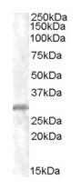 Western blot - CHMP5 antibody (ab31282)