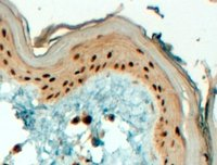 Immunohistochemistry (Formalin/PFA-fixed paraffin-embedded sections) - AP2 gamma antibody (ab31288)