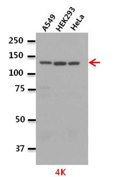Western blot - Anti-Leucyl tRNA synthetase antibody (ab31534)