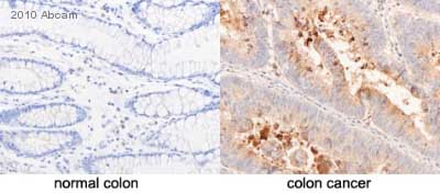 Immunohistochemistry (Formalin/PFA-fixed paraffin-embedded sections) - CD24 antibody [8.B.76] (ab31622)