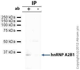 Immunoprecipitation - Anti-hnRNP A2B1 antibody (ab31645)