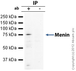 Immunoprecipitation - Anti-Menin antibody - ChIP Grade (ab31902)