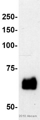 Western blot - Paxillin antibody [Y113] (ab32084)