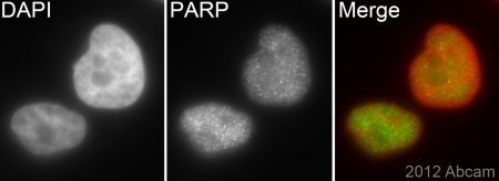 Immunocytochemistry Immunofluorescence Anti Parp