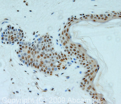 Immunohistochemistry (Formalin/PFA-fixed paraffin-embedded sections) - eIF4A3 antibody (ab32485)
