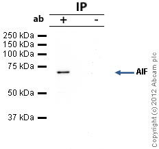 Immunoprecipitation - Anti-AIF antibody [E20] (ab32516)