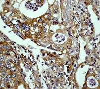 Immunohistochemistry (Formalin/PFA-fixed paraffin-embedded sections) - ERK1 antibody [Y72] (ab32537)