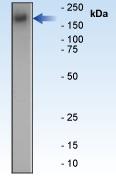 Western blot - Anti-EGFR antibody [E114] (ab32562)