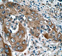 Immunohistochemistry (Formalin/PFA-fixed paraffin-embedded sections) - Anti-EGFR antibody [E114] (ab32562)