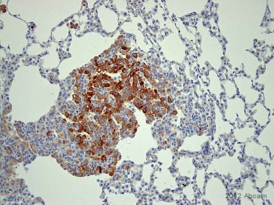 Immunohistochemistry (Formalin/PFA-fixed paraffin-embedded sections) - Anti-Cytokeratin 8 (phospho S73) antibody [E431-2] (ab32579)