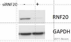 Western blot - Anti-RNF20 antibody (ab32629)