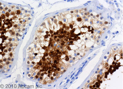 Immunohistochemistry (Formalin/PFA-fixed paraffin-embedded sections) - TPX2 antibody [18D5-1] (ab32795)