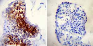 Immunohistochemistry (Formalin/PFA-fixed paraffin-embedded sections)-Anti-TPX2 antibody [18D5-1](ab32795)