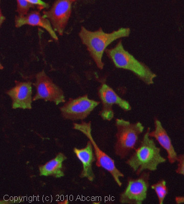 Immunocytochemistry/ Immunofluorescence - Anti-M6PR (cation independent) antibody (ab32815)