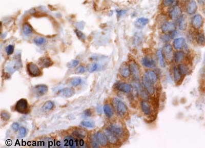 Immunohistochemistry (Formalin/PFA-fixed paraffin-embedded sections) - alpha Actinin 4 antibody [7H6] (ab32816)