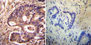 Immunohistochemistry (Formalin/PFA-fixed paraffin-embedded sections)-Anti-alpha Actinin 4 antibody [7H6](ab32816)