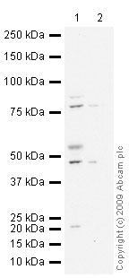 Western blot - Neuroserpin antibody (ab33077)