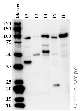 Western blot - Anti-EEF2 antibody (ab33523)