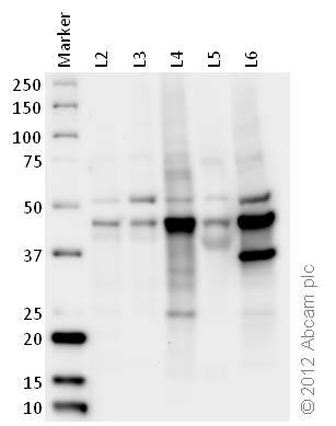 Western blot - Anti-EBP1 antibody (ab33613)