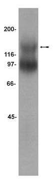 Western blot - Anti-TrkB antibody (ab33655)