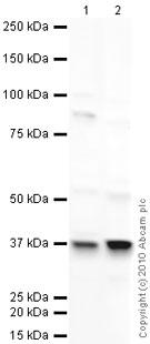 Western blot - LYVE1 antibody (ab33682)