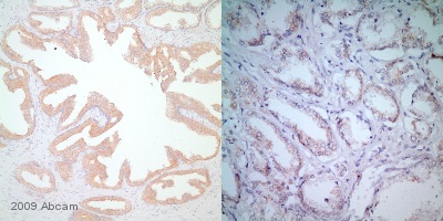 Immunohistochemistry (Formalin/PFA-fixed paraffin-embedded sections) - B Raf antibody [EP152Y] (ab33899)