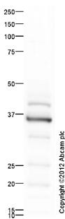 Western blot - Anti-Hex antibody - ChIP Grade (ab34222)