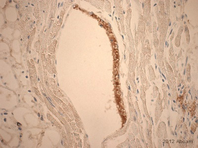 Immunohistochemistry (Formalin/PFA-fixed paraffin-embedded sections) - Anti-Fibrinogen antibody (ab34269)