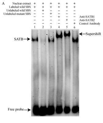 Electrophoretic Mobility Shift Assay - Anti-SATB2 antibody (ab34735)